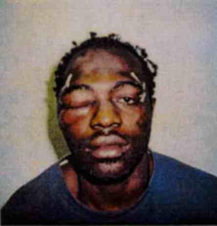 Rodney King tras la paliza